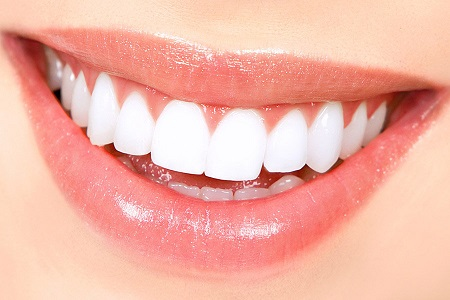 teeth whitening and a healthier smile