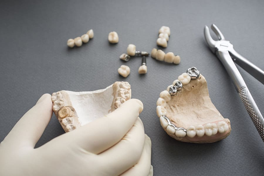 dental-implants-types-of-dentures-partial-and-complete-dentures