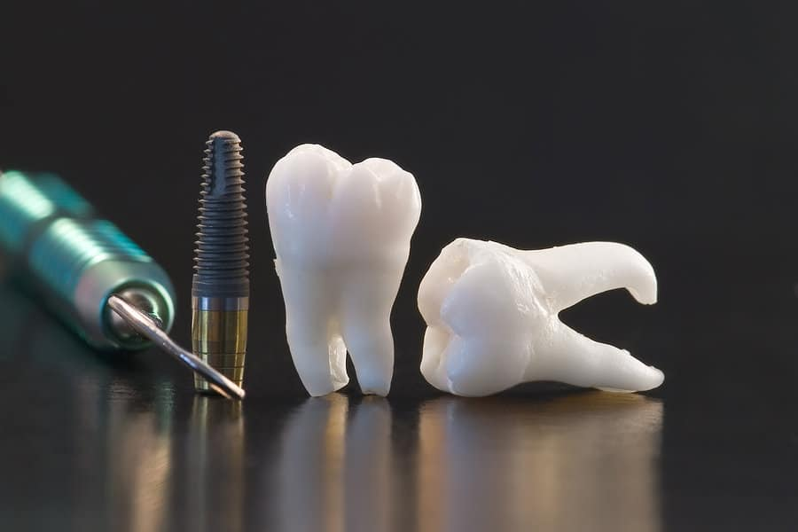 Dental implant risks