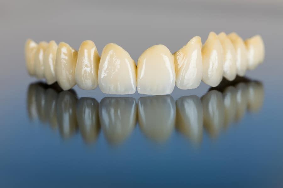 Alternative Techniques for Dental Implants