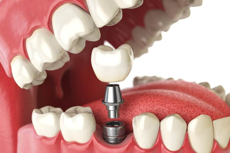 dental-implants-everything-you-need-to-know-about-mini-implants