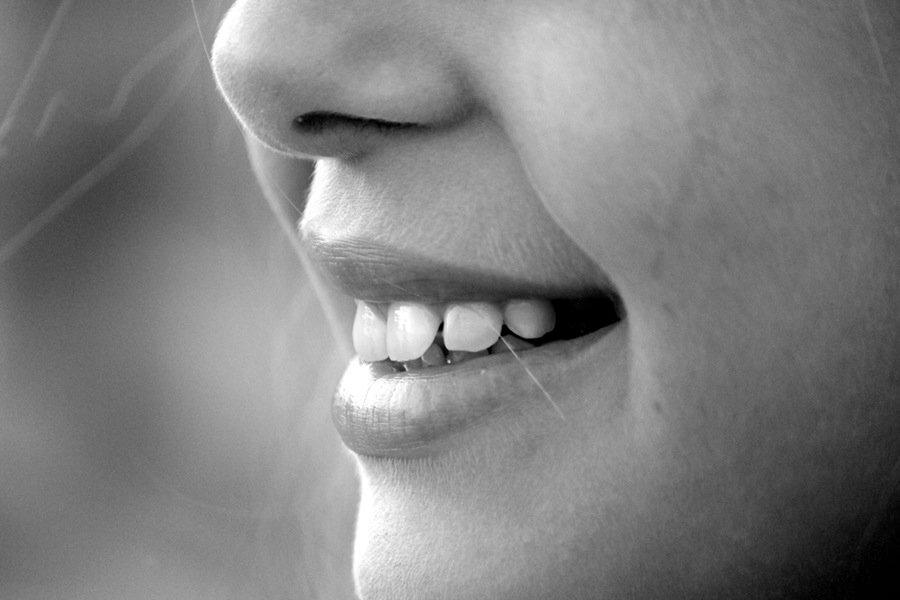 FAQ's About Dental Veneers