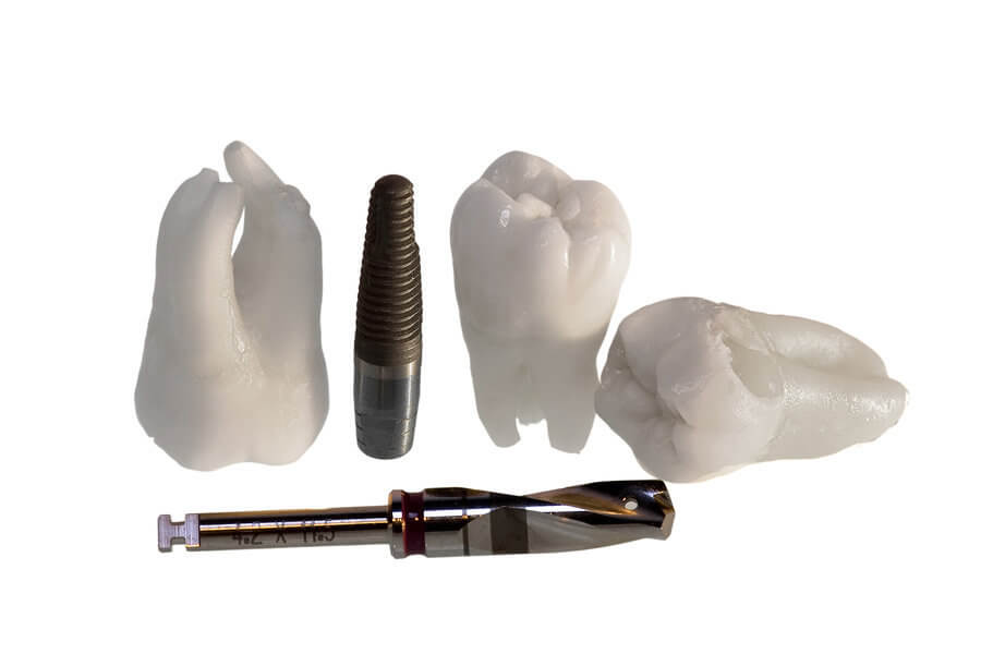 Frequently Asked Questions About Dental Implants
