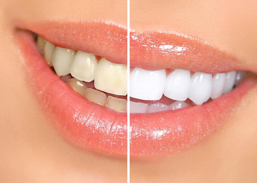 teeth-whitening-faqs