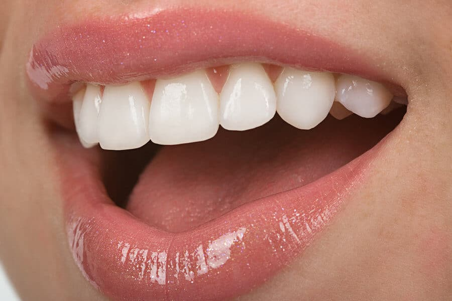 Dental veneers and dental bonding