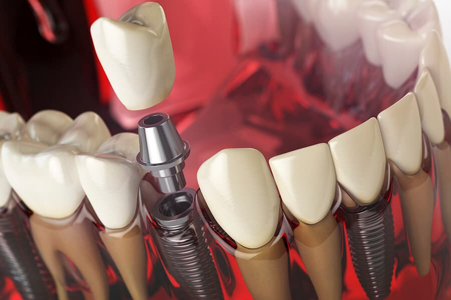 Dental Implant Problems