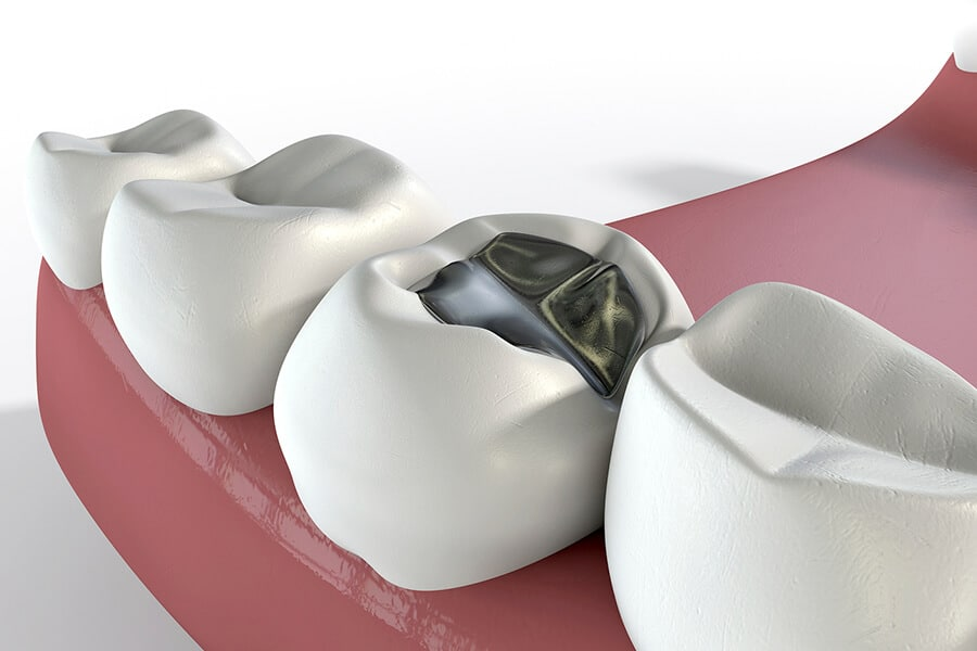 Tooth Cavity Fillings