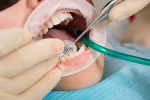 Replacing Dental Crown