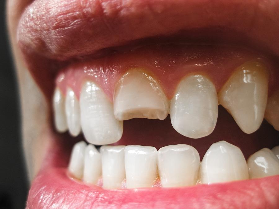 Broken Denture Tooth