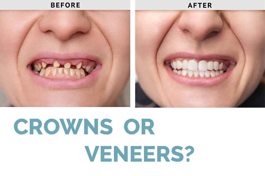 Crown vs Veneer