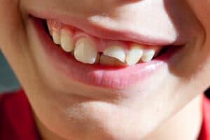 Fix Broken Tooth