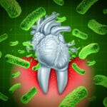 Gum Disease and Heart Attack