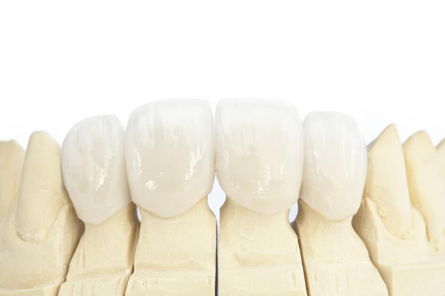 Dental Crowns vs Veneers