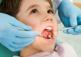Cavities in Baby Teeth