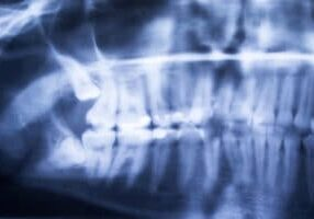 Wisdom Teeth Removal Procedure