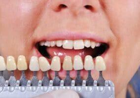 Making Bigger Teeth Smaller