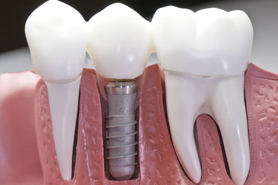 FAQs About Overdentures