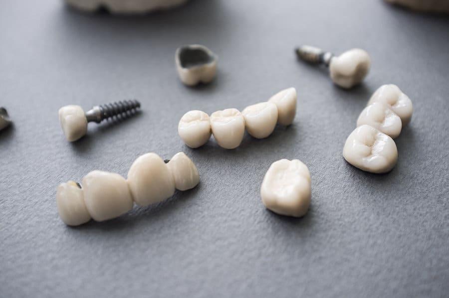 Dentures and Over-dentures