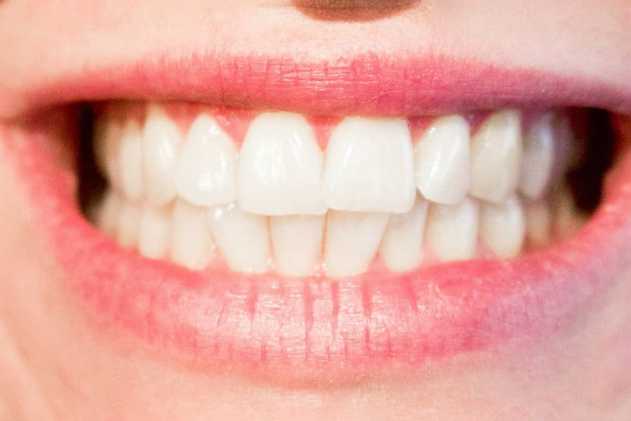 Cosmetic dentistry photo