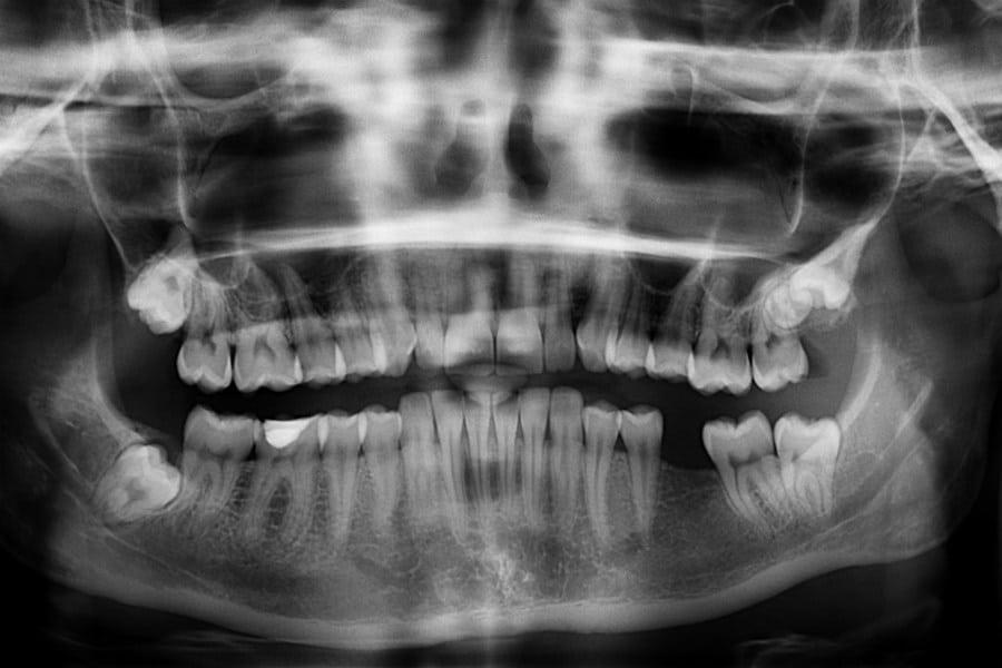 Missing teeth photo