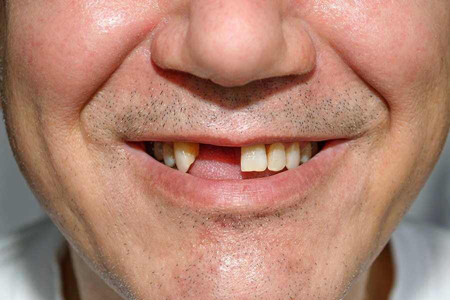Tooth Loss in Adults