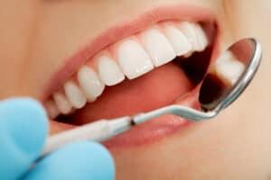 Dental Bonding Vs Veneers