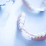 Types of Partial Dentures
