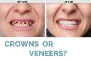 Crown vs Veneer