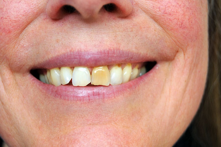 Stained Teeth Causes