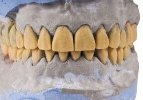 Tooth Erosion Symptoms