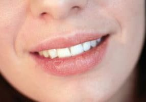 what causes dry mouth